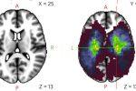 Corbetta: studiare il cervello è come studiare filosofia